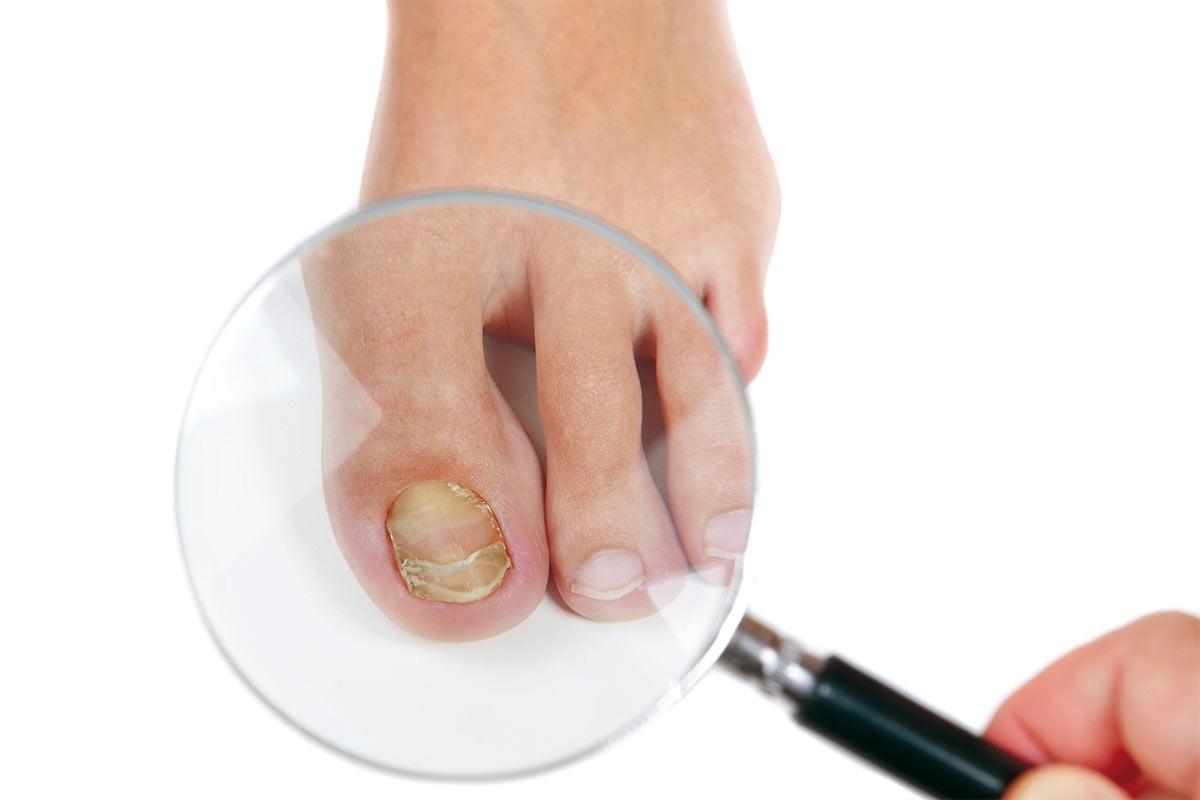 Грибок ногтей как обрабатывать обувь